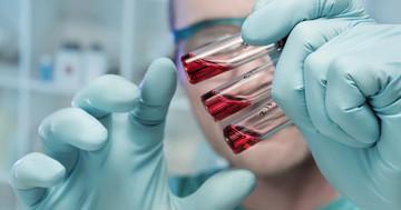 致死性出血熱に新薬、マールブルグ病の生存率を「0%」から「100%」にの写真