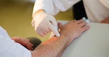 脳卒中患者の手首に刺激を与えると、手の運動機能が良くなった の写真