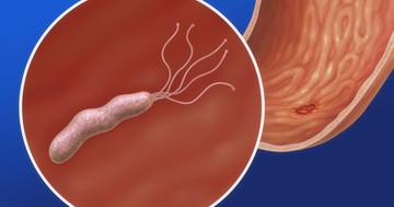 内視鏡生検で萎縮性胃炎があった人の50人に1人で20年以内に胃がんが発症するの写真