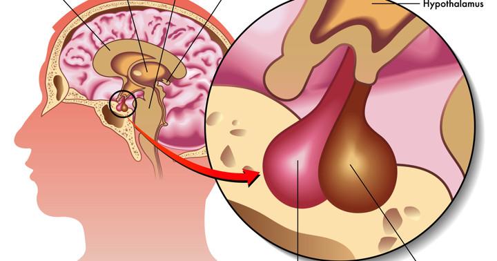異常なホルモン分泌を抑える新薬、パシレオチドが先端巨大症を治療の写真