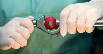 内視鏡手術に使われる医療機器(手術室の中シリーズ④)の写真