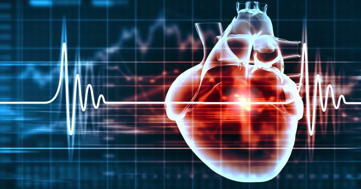 心臓リハビリテーションは虚血性心疾患後の死亡率を減少させるの写真
