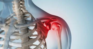 肩腱板損傷を治療する「増殖療法」、その効果は?の写真