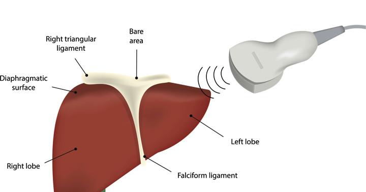 脂肪肝の診断に腹部エコーはどの程度有用なのか? の写真