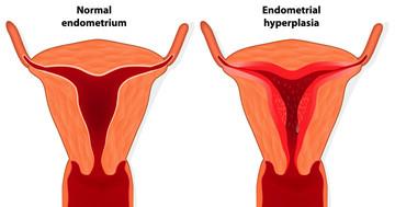 子宮内膜増殖症が見つかったとき、すでに子宮体がんがあることが多い4つの場合の写真