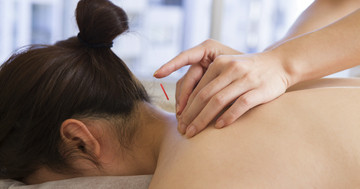 後頭神経痛を鍼治療で改善?4年続いた痛みが軽減の写真