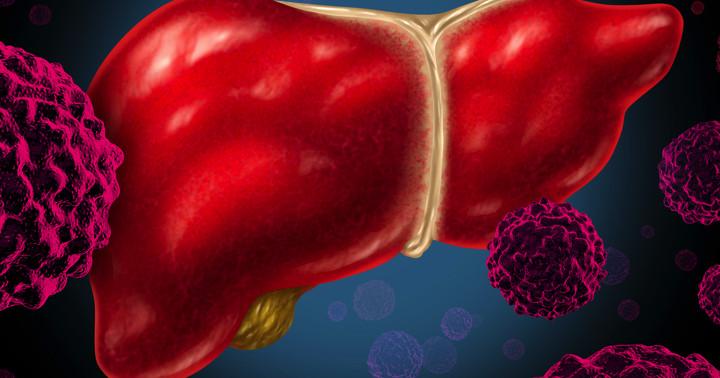 肝臓がんに対する化学療法の副作用、ソラフェニブの注意点とは の写真