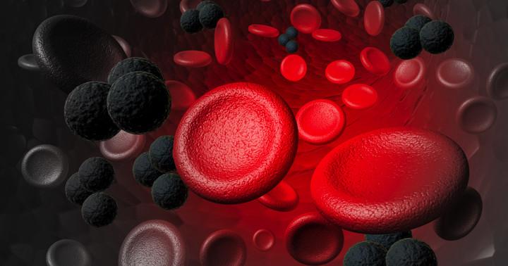 多発性骨髄腫の治療に、化学療法の効果は?ボルテゾミブを含む多剤使用を比較の写真