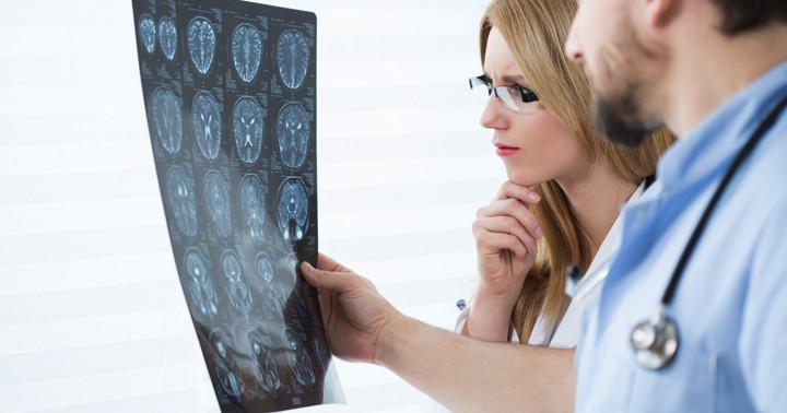 脳動静脈奇形があるとALSになるリスクが2.69倍 の写真