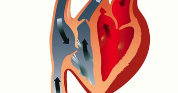 心臓の僧帽弁形成術は弁置換術と比べて僧帽弁閉鎖不全症の生存率を向上する の写真