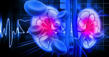 慢性腎臓病は高カリウム血症による死亡リスクを高めるかもしれないの写真