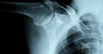 肩鎖関節脱臼の手術で5年後も結果良好の写真