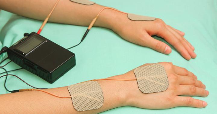 脳卒中で麻痺した手の機能が、ツボに電気刺激を行うと改善するの写真