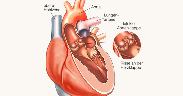 経カテーテル大動脈弁置換術と大動脈弁置換術は術後の成績は変わらず、外科的手術ハイリスク患者についての写真