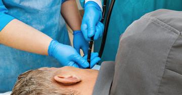 食道がんの手前の段階、バレット食道がある人は内視鏡検査を受けるべきか?の写真
