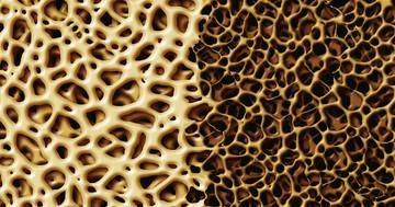 成長ホルモンは閉経後骨粗しょう症の女性の骨密度を増やす?の写真