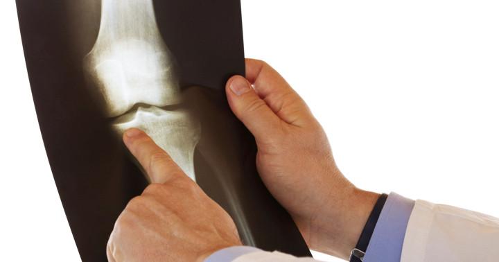 変形性膝関節症の軟骨を再生、幹細胞の効果は2年後にも続いていた の写真