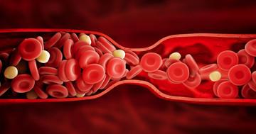 くも膜下出血後のスパズムに対するファスジルの効果 の写真