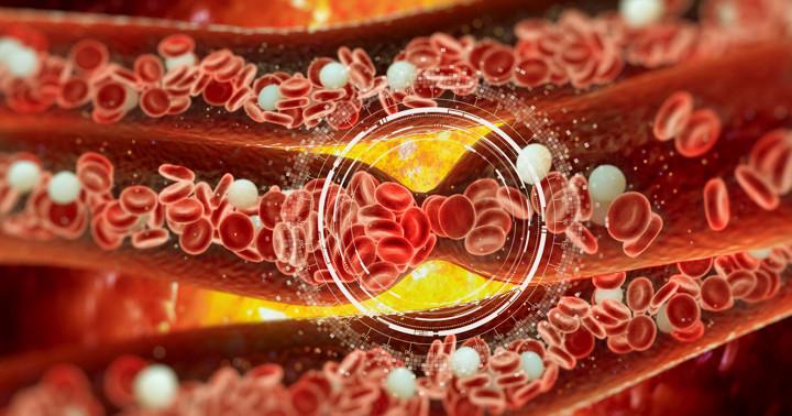 血栓が見えた!PET/CTの画像で位置を特定の写真
