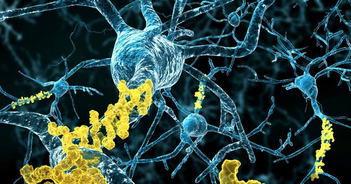 医療行為によりアルツハイマー病の原因物質が脳に侵入?の写真