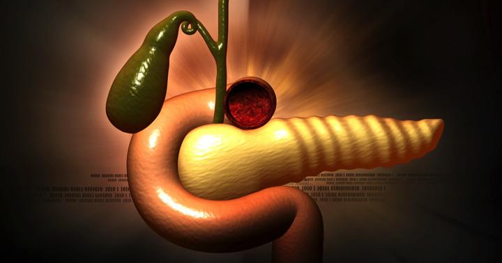 急性膵炎患者の46%が再発、45歳未満でリスクは倍以上 の写真