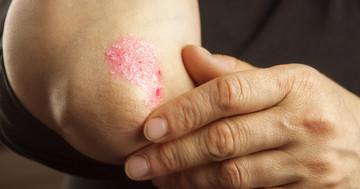 乾癬性関節炎は2年以内に治療を開始するとQOLが改善 の写真