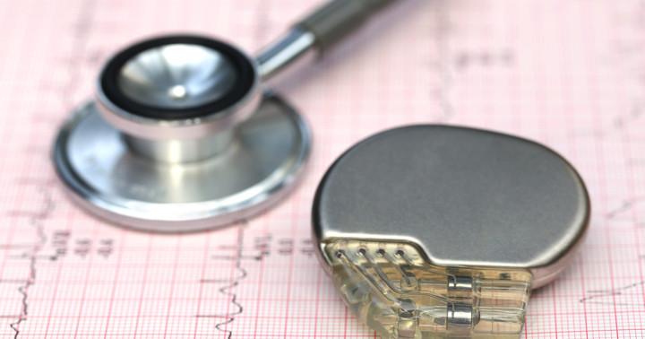 不整脈をペースメーカーで治療、洞不全症候群に対する効果は?の写真
