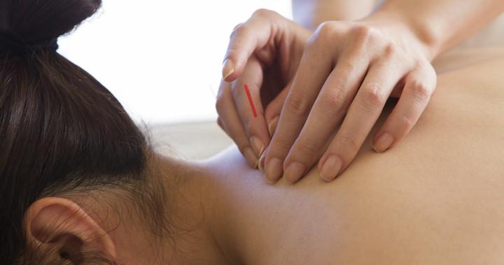 トリガーポイントに鍼を打つと、首の痛みが軽く、よく動くようになった の写真