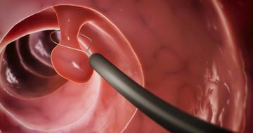 大腸がんができる遺伝病に内視鏡で対抗、家族性腺腫性ポリポーシスによる数百のポリープを切除の写真
