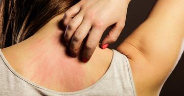 アトピー性皮膚炎の治療をオンラインで行うと有効か? の写真