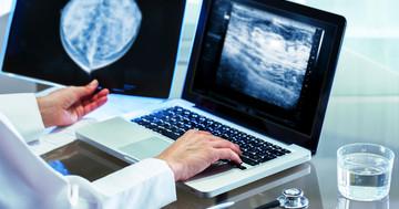 非浸潤性小葉がんから進んだ乳がんは年間どれぐらい発生するのか?の写真