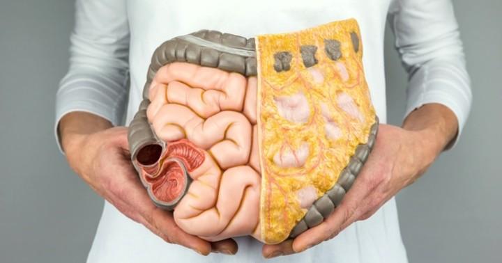 大腸がんと肥満の関係は? の写真