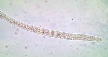 伊豆の土から産まれた研究がノーベル賞へ、イベルメクチンで寄生虫を駆除の写真