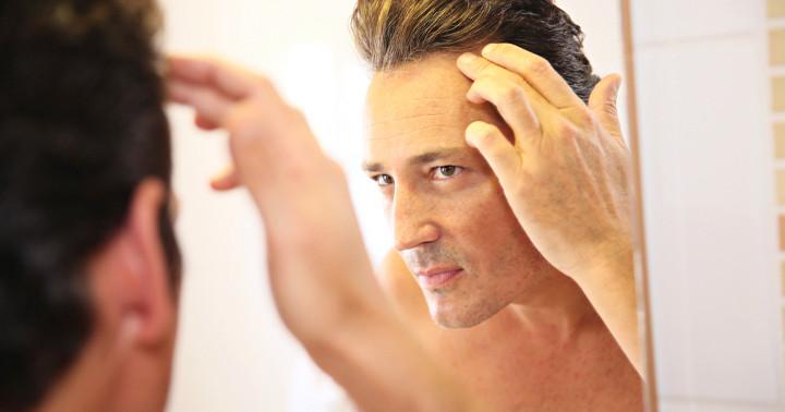 発毛薬ミノキシジル、5%は1%より効くのか? の写真