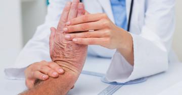 関節リウマチで悪化した手は運動療法で改善するか? の写真