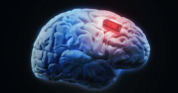 パーキンソン病に脳刺激を行うと運動能力が改善する の写真