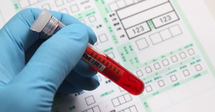 心筋梗塞を予測する、フルクトサミンと死亡率の関係とは?の写真