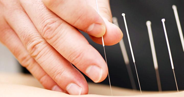 針治療にはどんな危険があるか? の写真