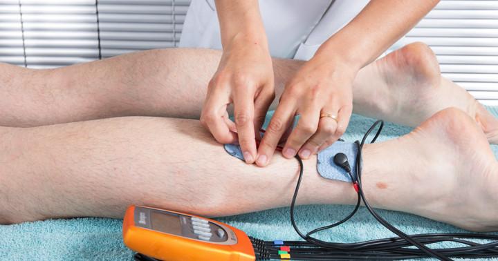 脳卒中後の過活動膀胱に電気刺激が有効 の写真