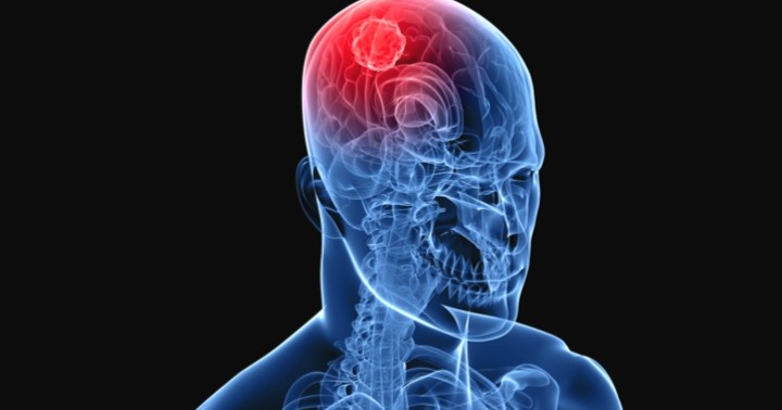 脳腫瘍のひとつ、髄膜腫の頻度は体型と運動量に関係する?の写真