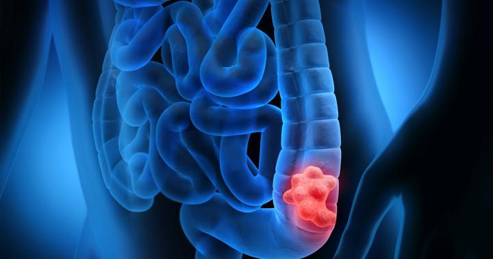 大腸内視鏡検査は、大腸がん予防の役に立つのか?の写真