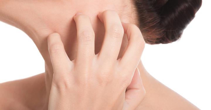 大人のアトピー性皮膚炎を治療、免疫をコントロールするデュピルマブの効果は?の写真