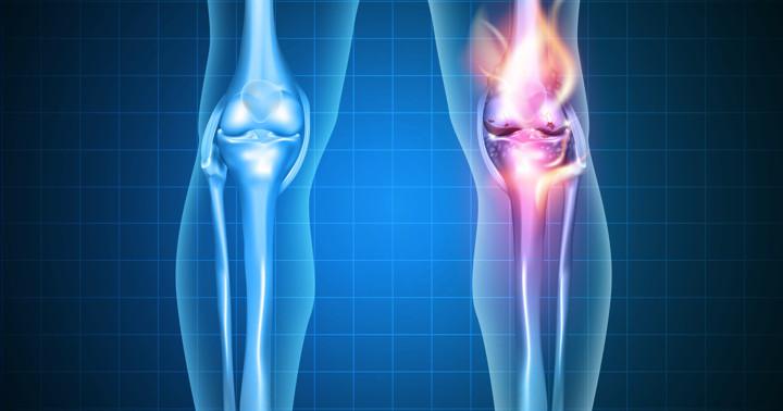 変形性膝関節症の痛みには、運動と何を組み合わせればよい? の写真