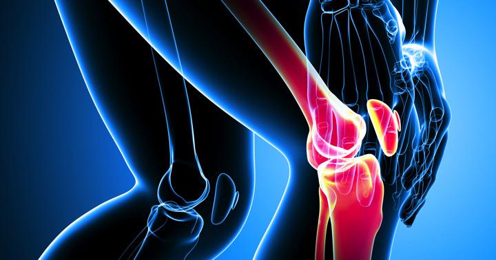 変形性膝関節症の痛みを改善するなら手術をした方がよい の写真