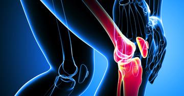 変形性膝関節症の痛みを改善するなら手術をした方がよい