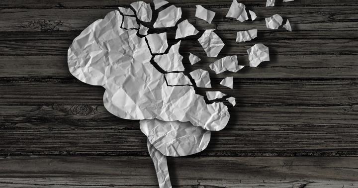 脳挫傷は早期認知症を引き起こす!?の写真