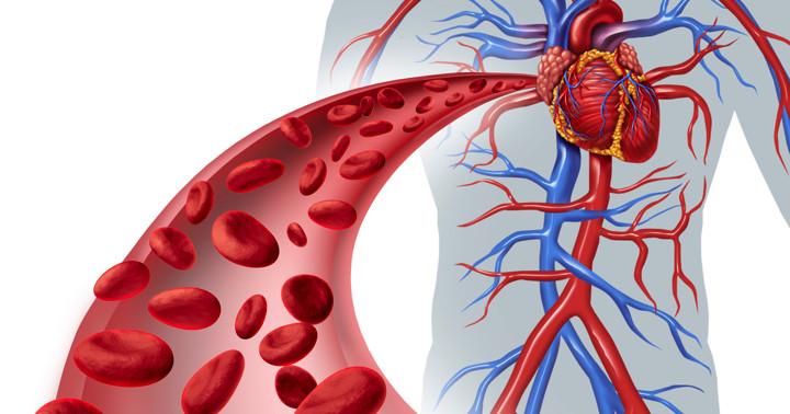 心臓の血管が石灰化すると10年以内に何が起きるか? の写真