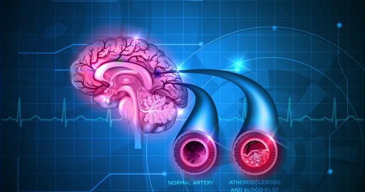 脳梗塞の救急治療で、血管内治療は有効か?の写真