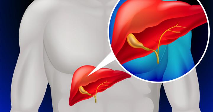 肝内胆管癌でも、この条件に合えば手術で5年生存率100%の写真