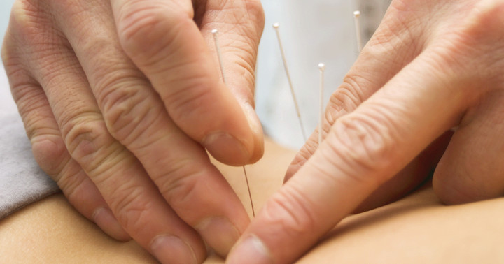 鍼によって脳卒中の再発を防げる? の写真